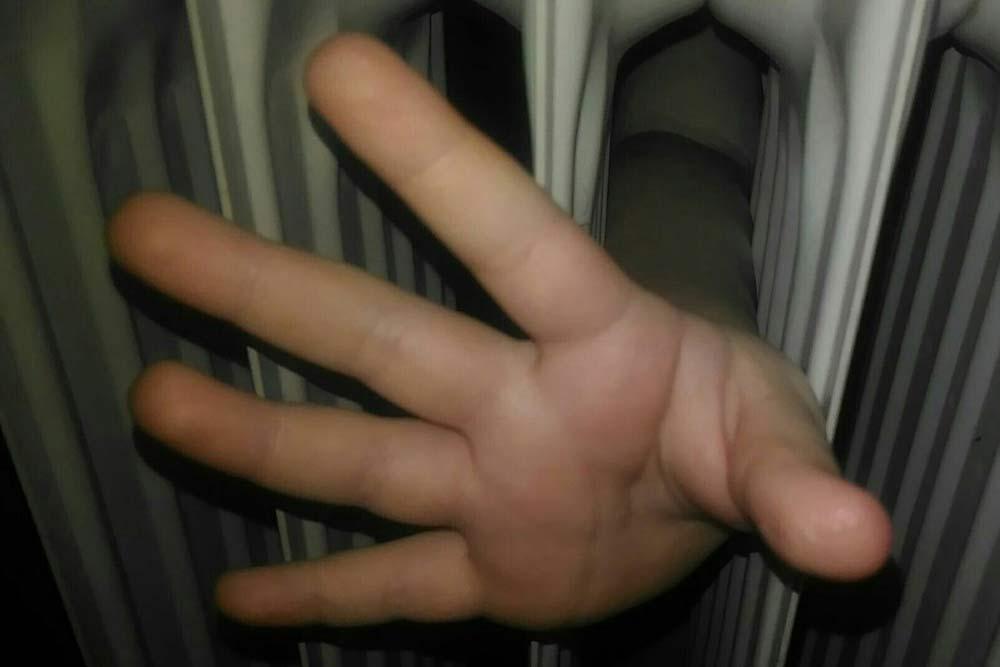 Рука девушки застряла вотопительной батарее вшколе